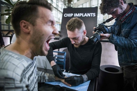 Chip Implants